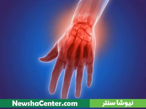 پک آرتروز و دردهای مفاصل - دمنوش نیوشا